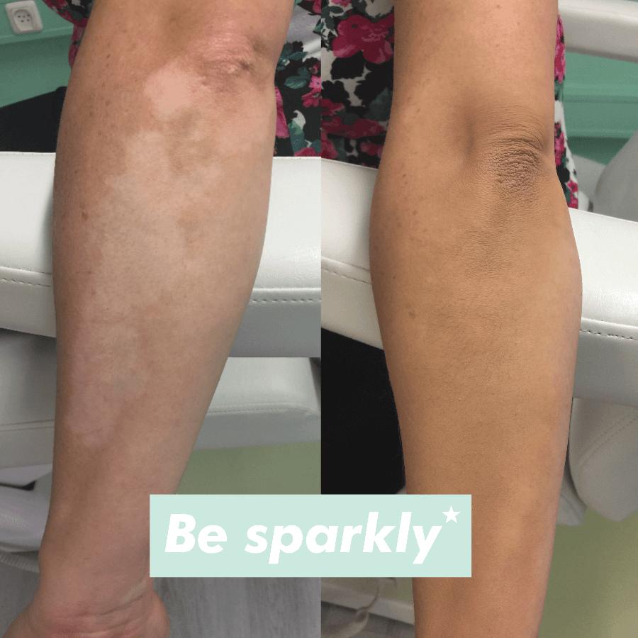 camoufleren vitiligo 2
